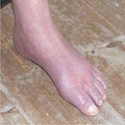 Hævede fødder - træn for at få ødemer væk fra fødder og ben