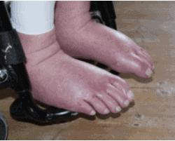 Hævede fødder med vand