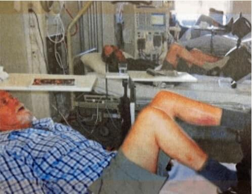 Dialysepatienter cykler i sengen i timevis